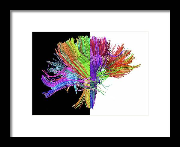 Brain Scan Framed Print featuring the photograph White Matter Fibres Of The Human Brain by Alfred Pasieka
