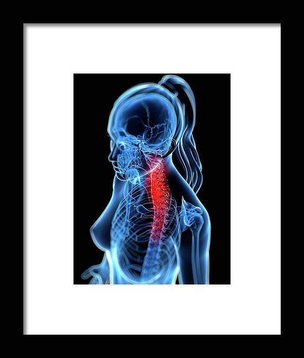 Anatomy Framed Print featuring the digital art Back Pain, Conceptual Artwork by Sciepro