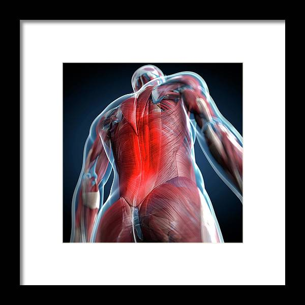 Physiology Framed Print featuring the digital art Back Pain, Conceptual Artwork by Science Photo Library - Sciepro