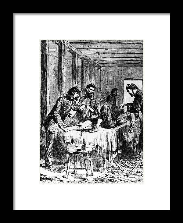 1860s Framed Print featuring the photograph Civil War: Amputation by Granger
