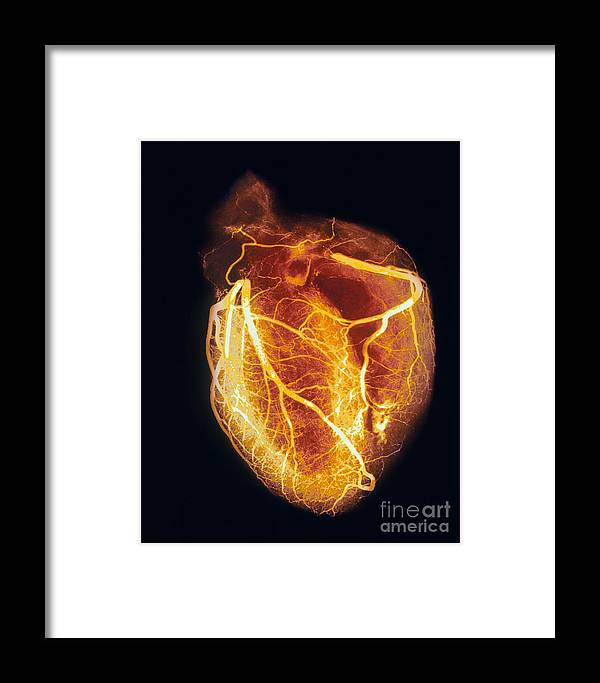 Angiogram Framed Print featuring the photograph Colored Arteriogram Of Arteries Of Healthy Heart by Spl