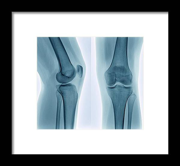 White Background Framed Print featuring the photograph Healthy Knee, X-ray by Zephyr