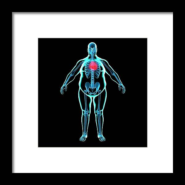 Risk Framed Print featuring the digital art Obese Mans Heart, Artwork by Science Photo Library - Roger Harris