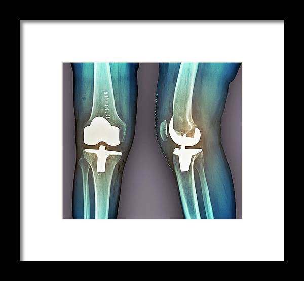 Artificial Framed Print featuring the photograph Total Knee Replacement, X-rays by Zephyr