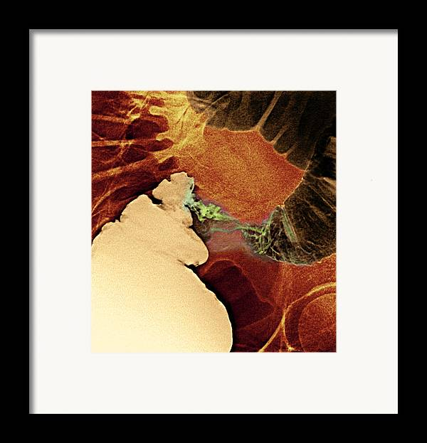 Medicine Framed Print featuring the photograph Colon Cancer, X-ray by Du Cane Medical Imaging Ltd