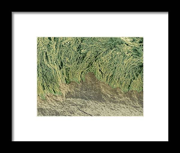 Dentin Framed Print featuring the photograph Dental Plaque, Sem by Steve Gschmeissner