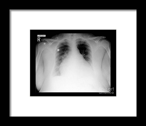 Enlarged Heart On Chest X-ray Framed Print by Medical Body Scans