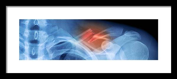 Bone Framed Print featuring the photograph Fractured Collar Bone, X-ray by Du Cane Medical Imaging Ltd