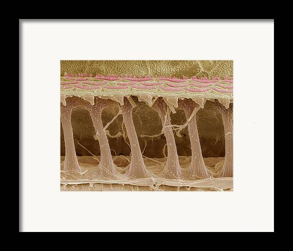 Electron Microscope Framed Print featuring the photograph Inner Ear Hair Cells, Sem by Steve Gschmeissner