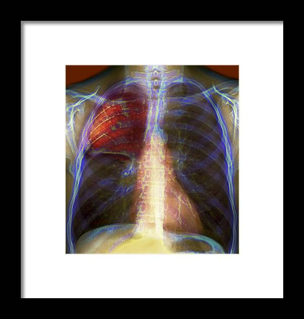 Infectious Framed Print featuring the photograph Pneumonia, X-ray by Du Cane Medical Imaging Ltd