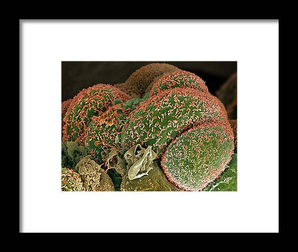 Condition Framed Print featuring the photograph Breast Cancer Cells, Sem by Steve Gschmeissner