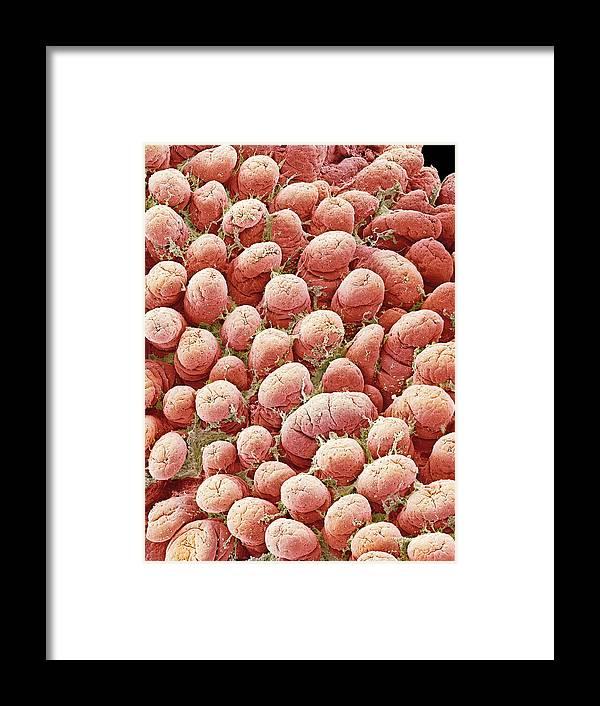 Villus Framed Print featuring the photograph Intestinal Lining, Sem by Steve Gschmeissner