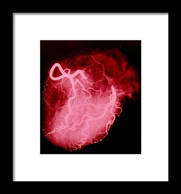 Arteriography Framed Print featuring the photograph Arteriograph Of The Coronary Arteries Of The Heart by .