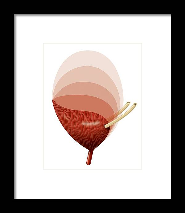 Bladder Framed Print featuring the photograph Bladder Expansion, Artwork by Art For Science