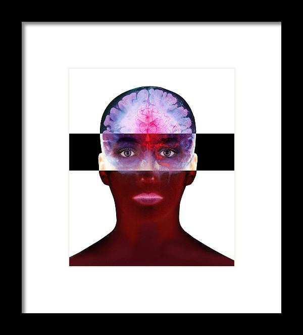 Human Body Framed Print featuring the photograph Brain Scan by Mehau Kulyk