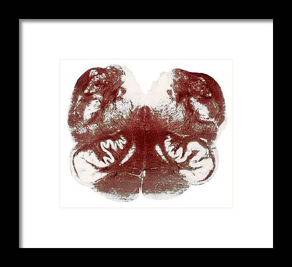 Brainstem Framed Print featuring the photograph Brainstem Cross-section, Light Micrograph by Steve Gschmeissner