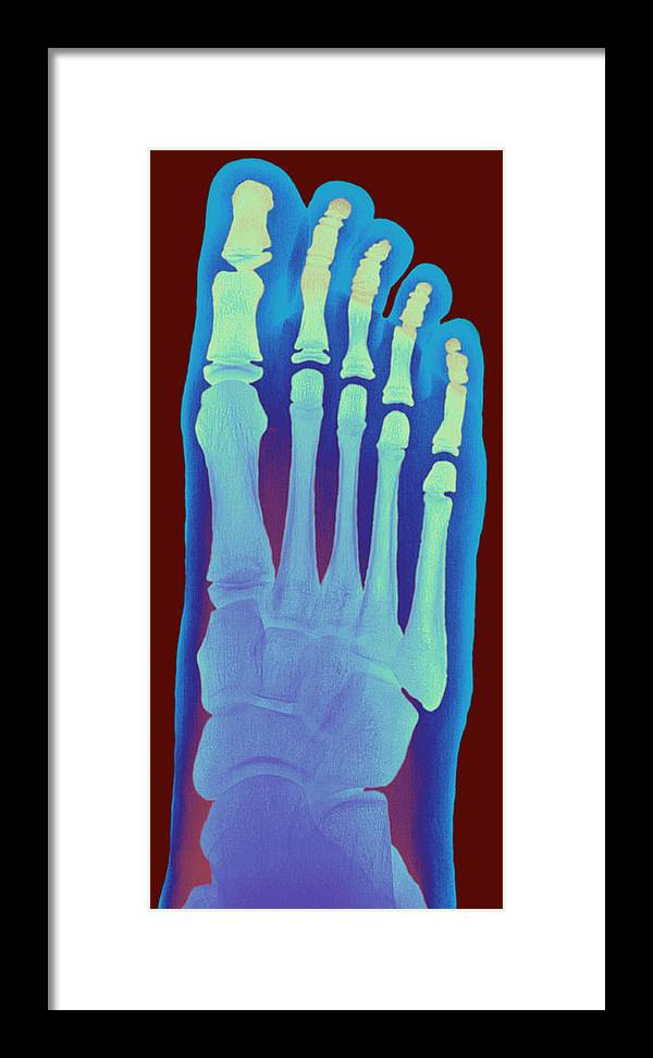 Metatarsal Framed Print featuring the photograph Child's Foot, X-ray by Du Cane Medical Imaging Ltd