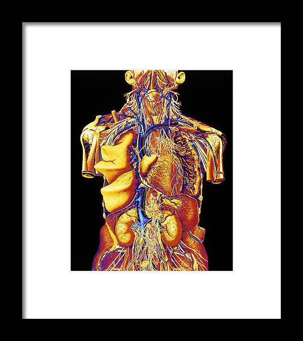 Abdomen Framed Print featuring the photograph Colour Artwork Of Abdominal & Thoracic Nerves by Mehau Kulyk