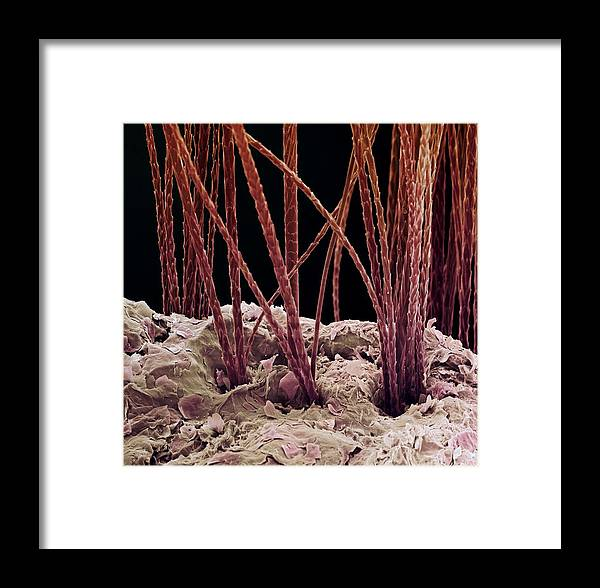 Dog Framed Print featuring the photograph Dog Hair, Sem by Steve Gschmeissner