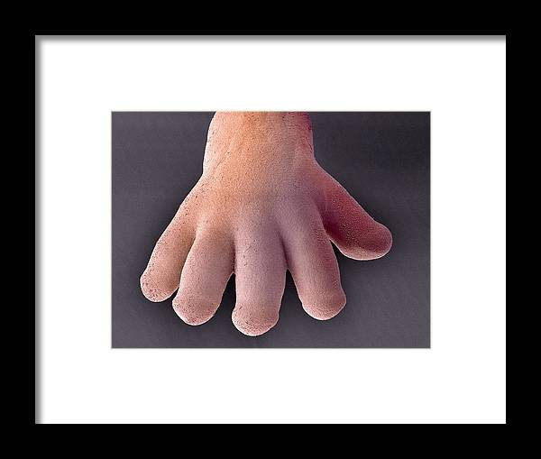 Hand Framed Print featuring the photograph Foetal Hand, Sem by Steve Gschmeissner