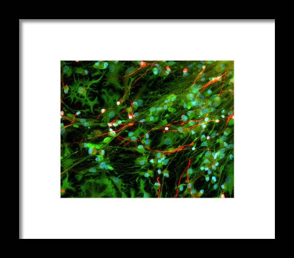 Cytology Framed Print featuring the photograph Foetal Nerve Cells, Light Micrograph by Riccardo Cassiani-ingoni