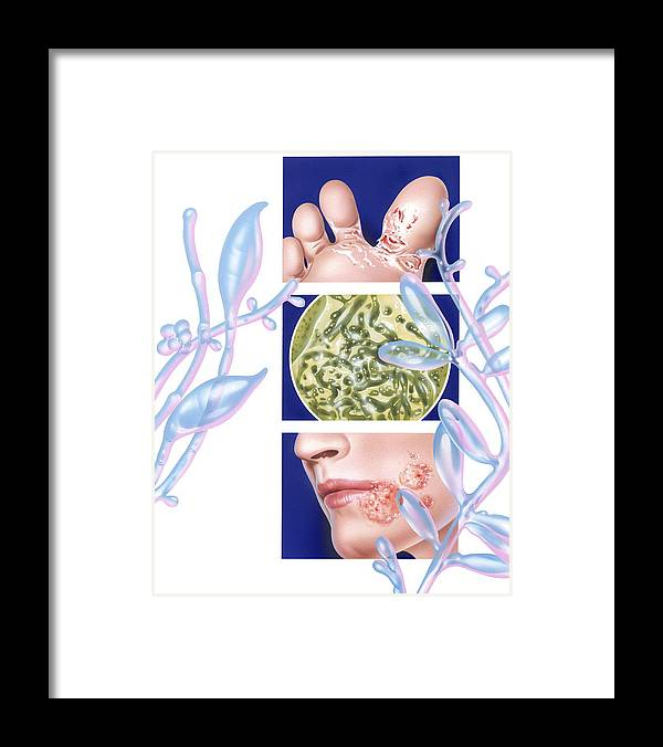 Tinea Framed Print featuring the photograph Fungal Infections by John Bavosi