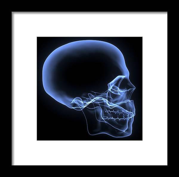 Human Skull, X-ray Artwork Framed Print by Pasieka