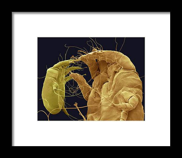 Mange Framed Print featuring the photograph Mange Mites, Sem by Steve Gschmeissner