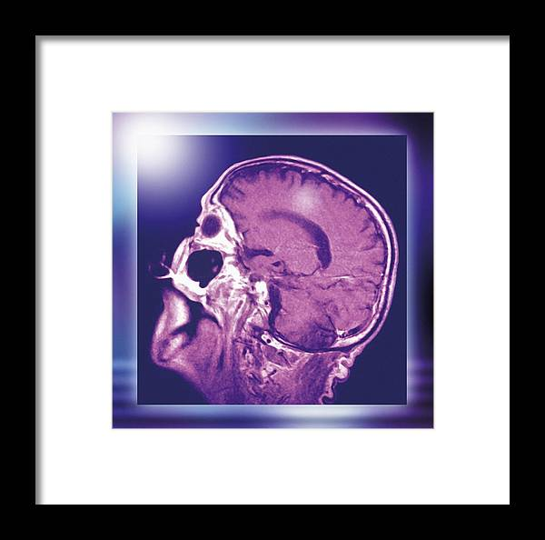 Brain Framed Print featuring the photograph Normal Head And Brain, Mri Scan by Miriam Maslo