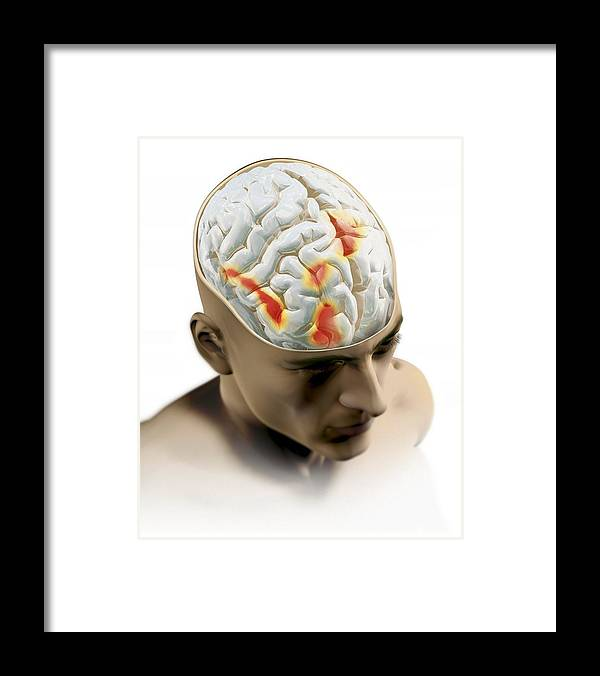 Placebo Effect Framed Print featuring the photograph Placebo Effect In The Brain, Artwork by Mikkel Juul Jensen