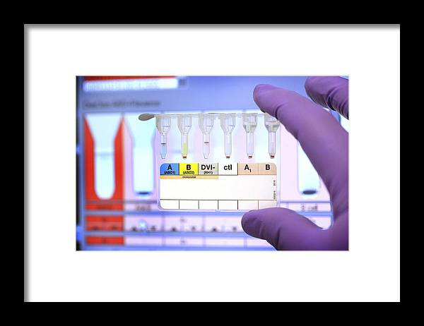 Laboratory Test Framed Print featuring the photograph Rhesus Test Recorded On Computer by Doncaster And Bassetlaw Hospitals