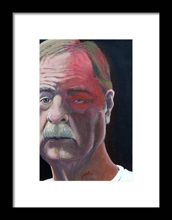 Face Framed Print featuring the painting Self Portrait With Shingles by Paul Chapman