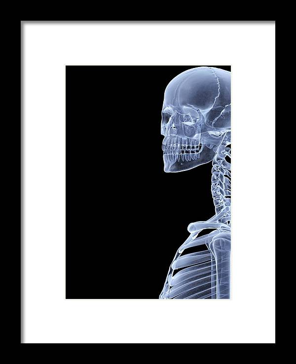 Human Framed Print featuring the photograph Skeleton, X-ray Artwork by David Mack