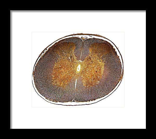 Tissue Framed Print featuring the photograph Spinal Cord, Light Micrograph by Dr Keith Wheeler