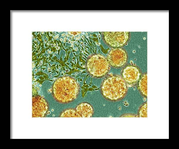 Stem Cell Framed Print featuring the photograph Stem Cells, Light Micrograph by Nibsc
