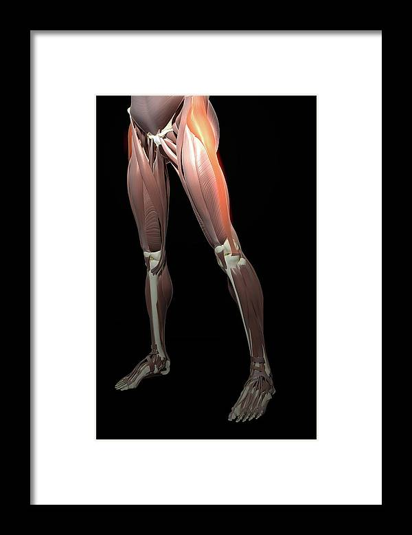 Vertical Framed Print featuring the photograph Thigh/lower Limb Abduction by MedicalRF.com