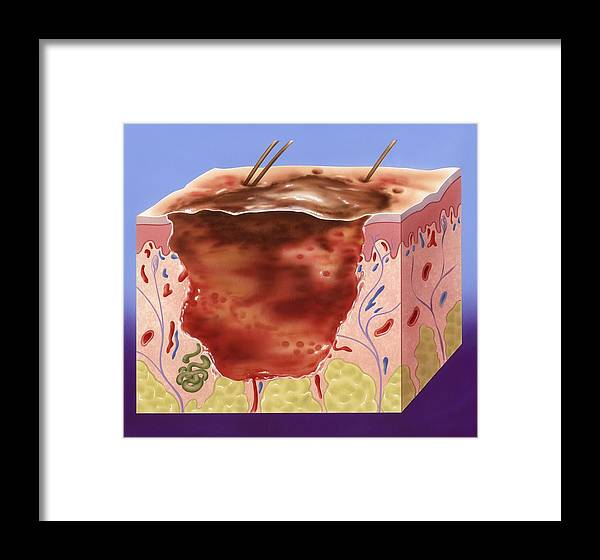 Epidermis Framed Print featuring the photograph Third-degree Burn, Artwork by John Bavosi