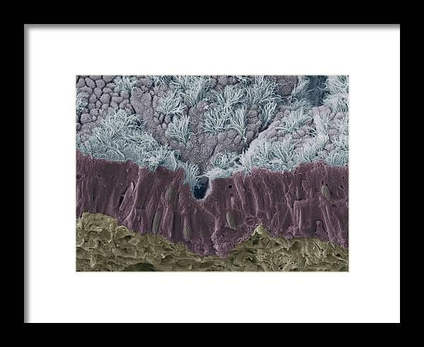 Human Framed Print featuring the photograph Trachea Mucous Membrane, Sem by Steve Gschmeissner