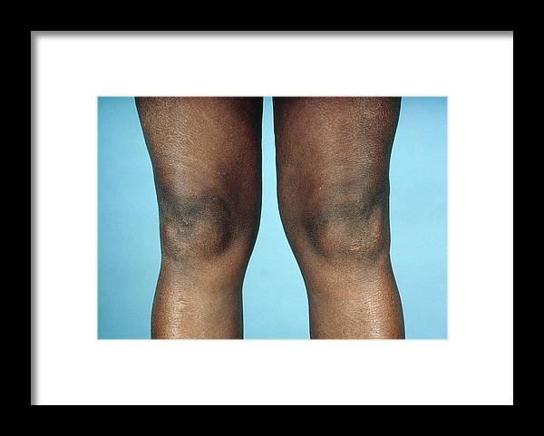 Arthritis Framed Print featuring the photograph View Of Knees Affected By Osteoarthritis by