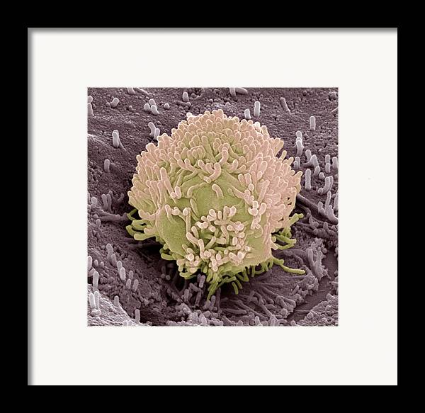 Cancer Framed Print featuring the photograph Colorectal Cancer Cell by Steve Gschmeissner
