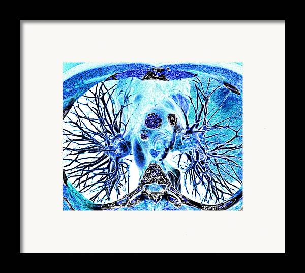 3-d Framed Print featuring the photograph Heart And Lungs, 3d Ct Scan by Pasieka