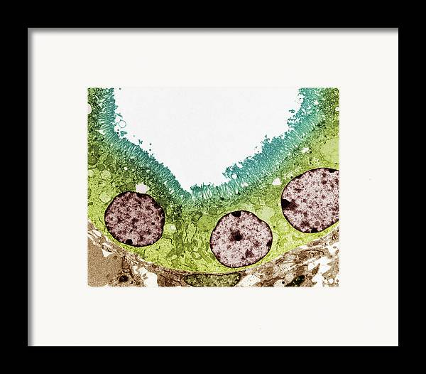 Proximal Convoluted Tubule Framed Print featuring the photograph Kidney Tubule, Tem by Steve Gschmeissner