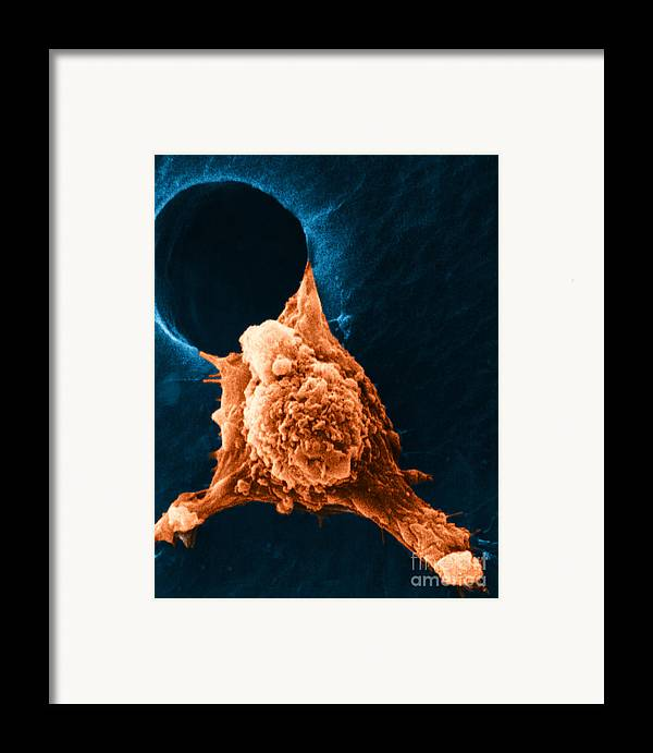 Sem Framed Print featuring the photograph Metastasis by Science Source