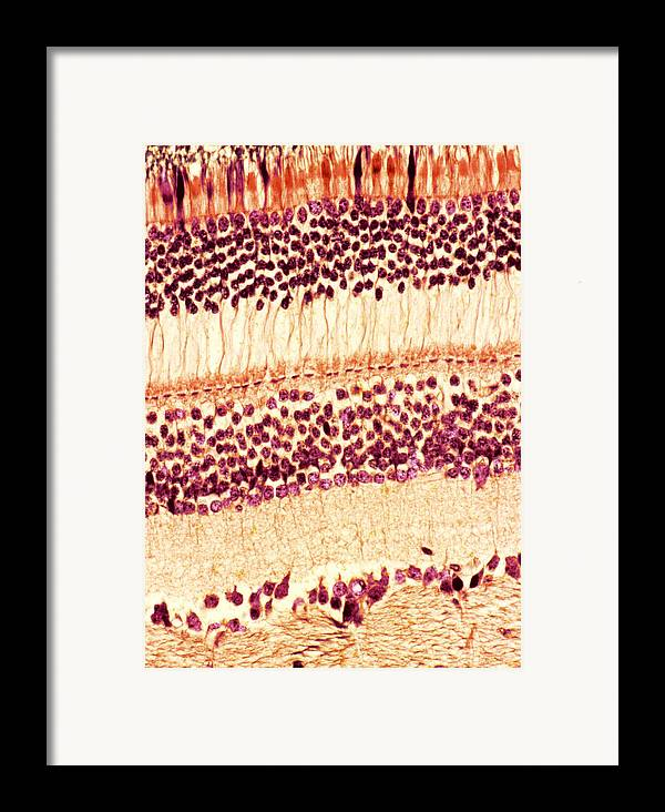Retina Framed Print featuring the photograph Retina, Light Micrograph by Steve Gschmeissner