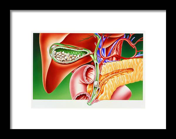 Gallstone Framed Print featuring the photograph Artwork Of Gallstones In Gall Bladder & Bile Duct by John Bavosi