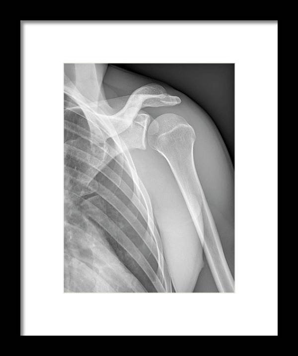 Tendon Framed Print featuring the photograph Normal Shoulder, X-ray by Zephyr