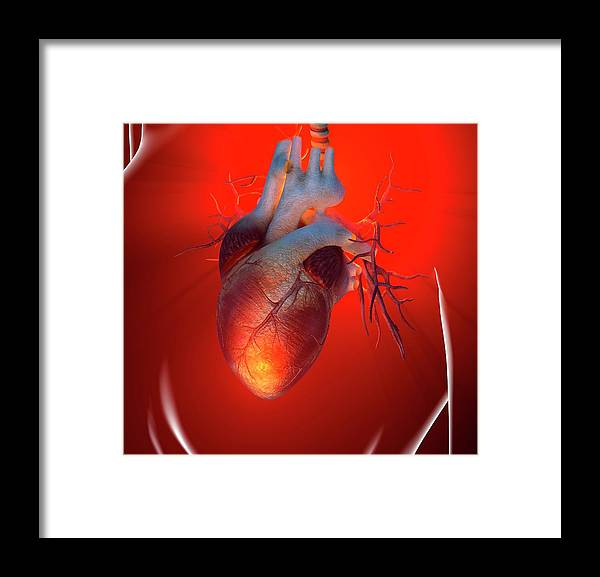 Event Framed Print featuring the digital art Heart Attack, Conceptual Artwork by Science Photo Library - Roger Harris
