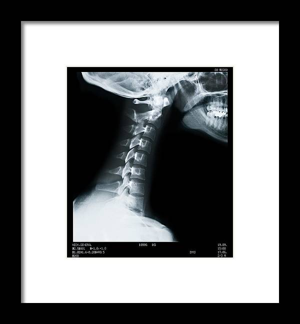 Human Vertebra Framed Print featuring the photograph X Ray Of Neck Vertebrae by Anthony Bradshaw