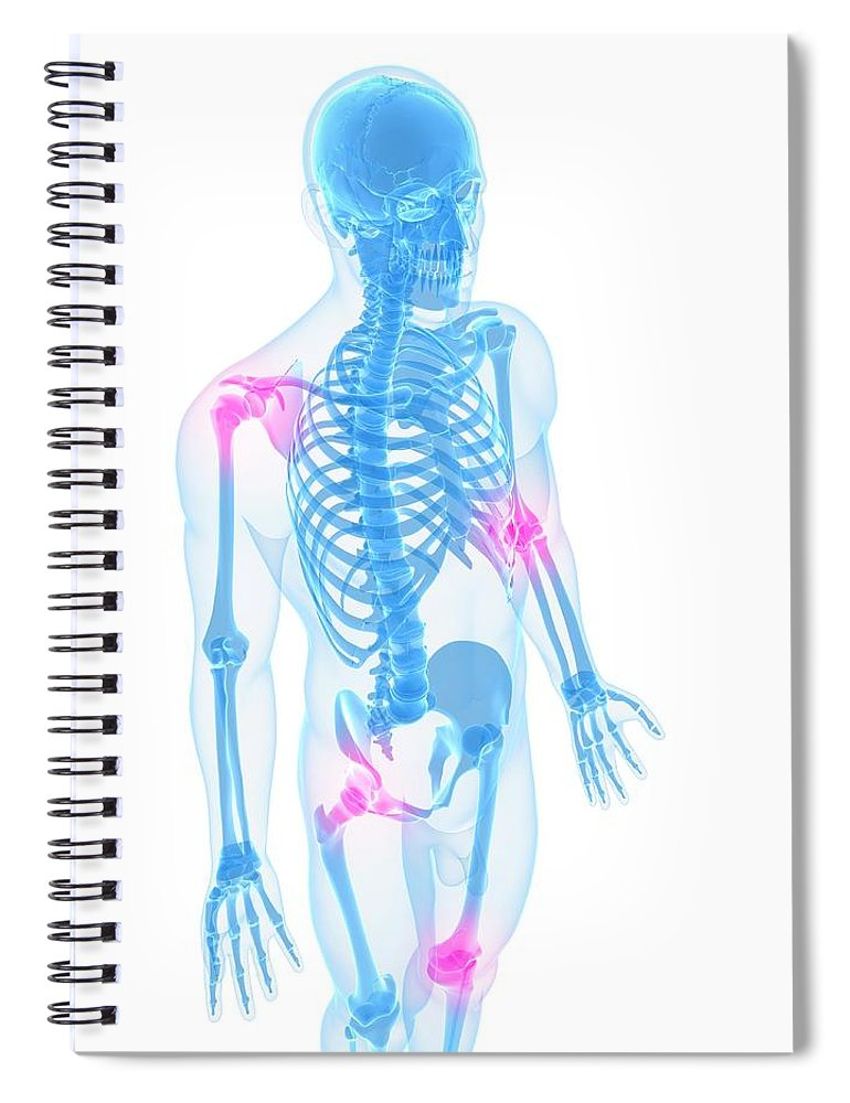 White Background Spiral Notebook featuring the digital art Joint Pain, Conceptual Artwork by Sciepro