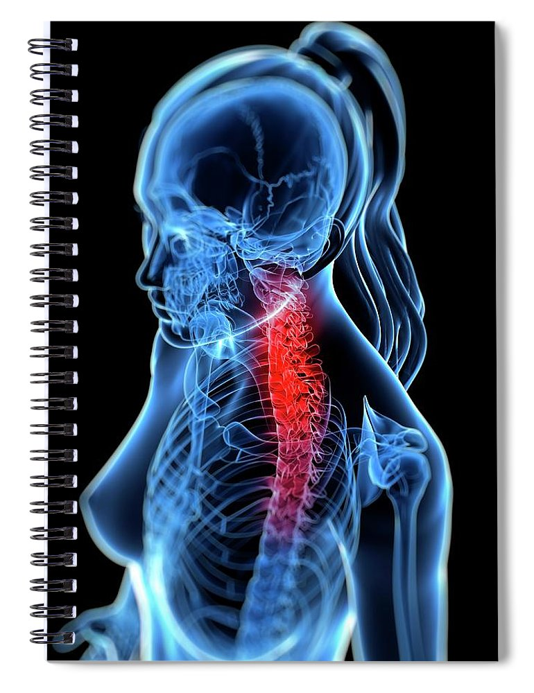Anatomy Spiral Notebook featuring the digital art Back Pain, Conceptual Artwork by Sciepro
